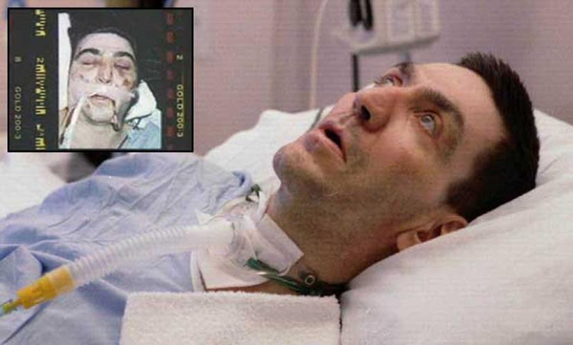 Richard Barnabé coma